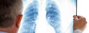 Portugal é país europeu onde mais se morre de pneumonia