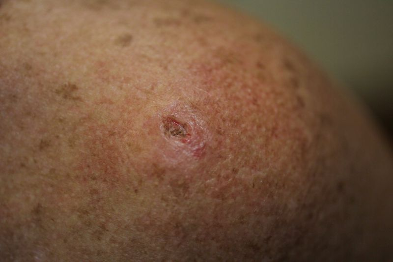 Cancro de pele. Mais de 50% dos doentes com lesão suspeita não procura médico em tempo útil